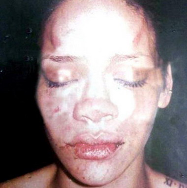 Крис Браун избил Рианну